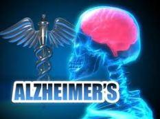 alzheimers9