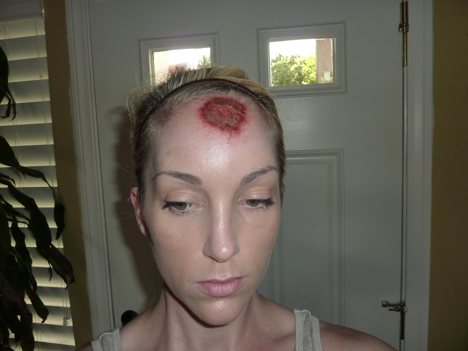 Facial skin cancer swelling