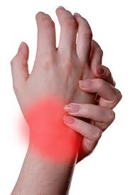 Muscle Strain And Tingling In Fingers 61