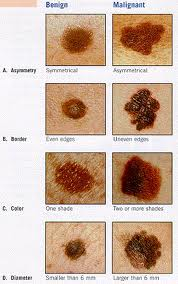 Mayo Clinic Study Dramatic Skin Cancer Rise 18 39 Newsmd What S Hot In Health
