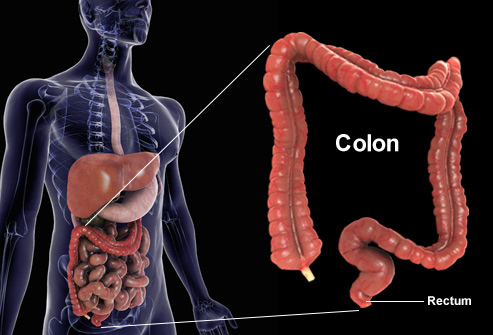 how to detect for colon cancer